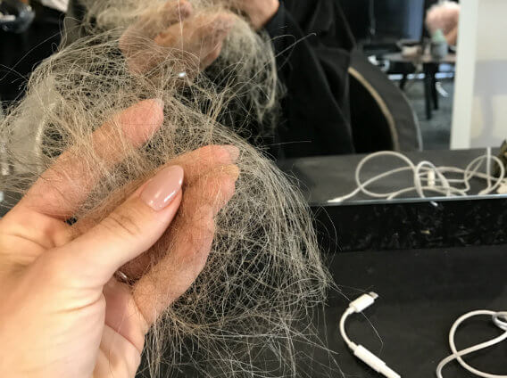 jeg taber mit hår