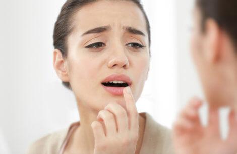 Er du træt af forkølelsessår?